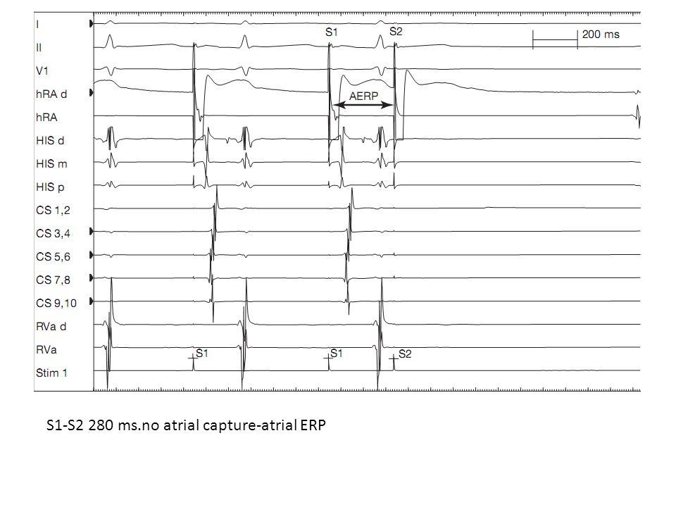 S1-S2 280 ms.no atrial capture-atrial ERP