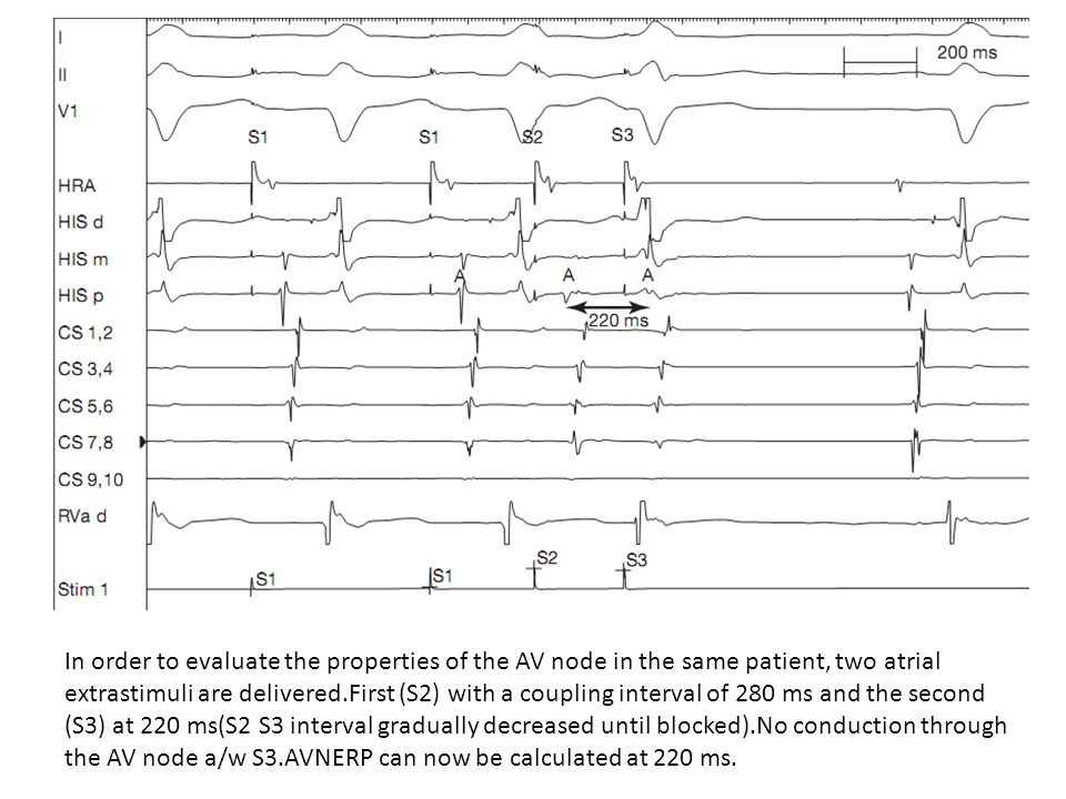 In order to evaluate the properties of the AV node in the same patient, two atrial extrastimuli are delivered.First (S2) with a coupling interval of 2