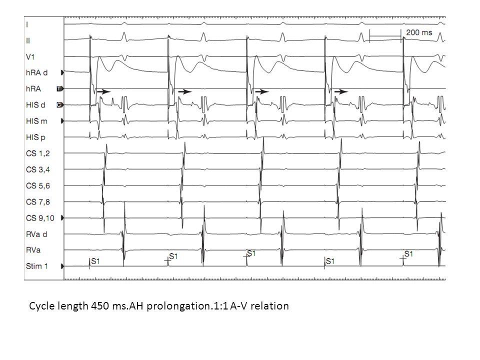 Cycle length 450 ms.AH prolongation.1:1 A-V relation