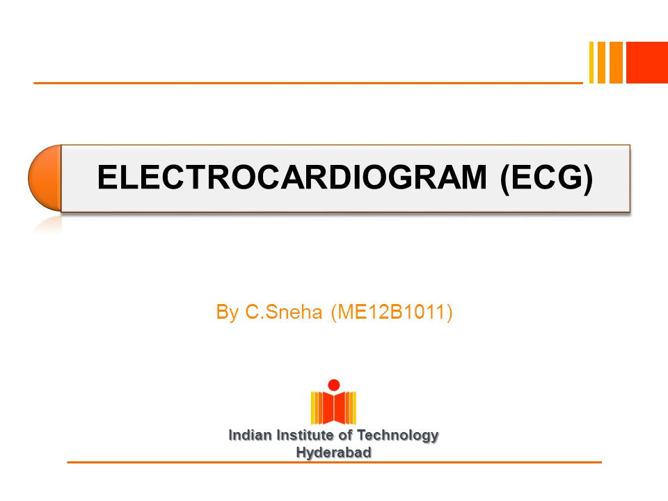 Indian Institute of Technology Hyderabad ELECTROCARDIOGRAM (ECG) By C.Sneha (ME12B1011)