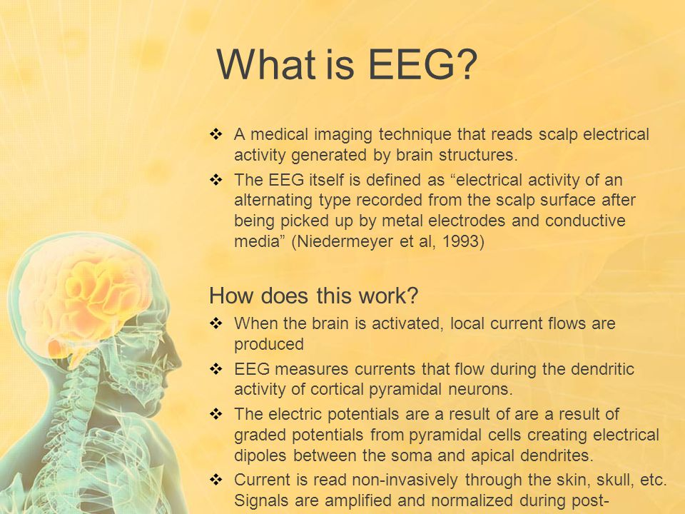 """What is EEG?  A medical imaging technique that reads scalp electrical activity generated by brain structures.  The EEG itself is defined as """"electri"""