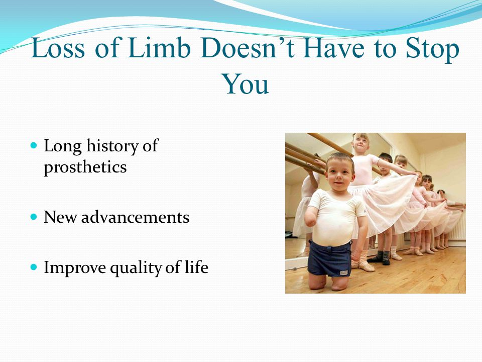 Loss of Limb Doesn't Have to Stop You Long history of prosthetics New advancements Improve quality of life