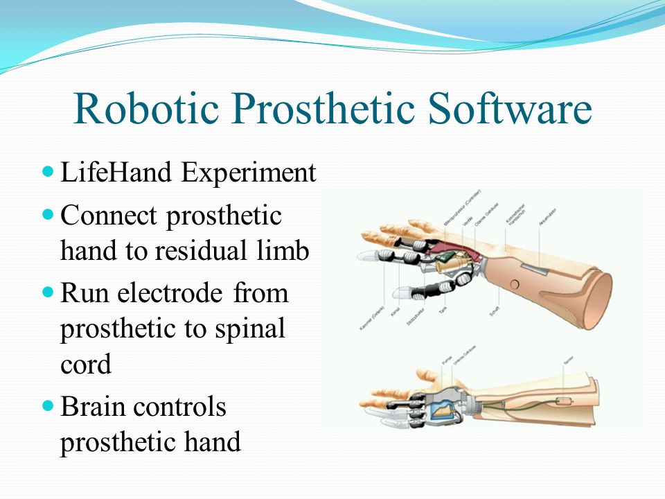 Robotic Prosthetic Example Hardware = prosthetic hand, electrodes on skin Software = muscle electrical stimulation signals computer in hand to grip fingers This is Myoelectrics.