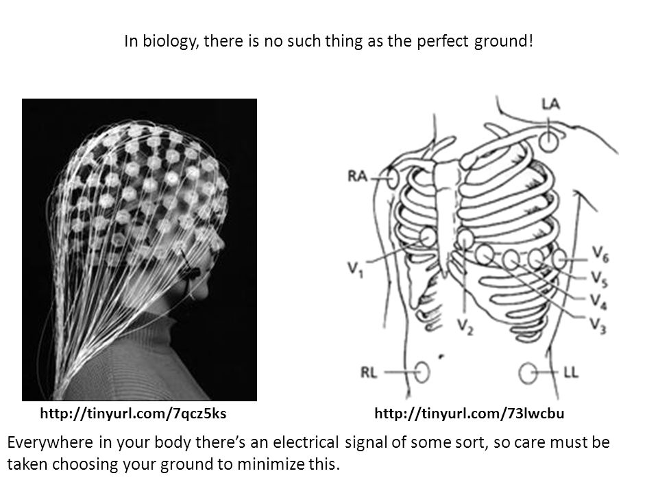 In biology, there is no such thing as the perfect ground! http://tinyurl.com/7qcz5kshttp://tinyurl.com/73lwcbu Everywhere in your body there's an elec