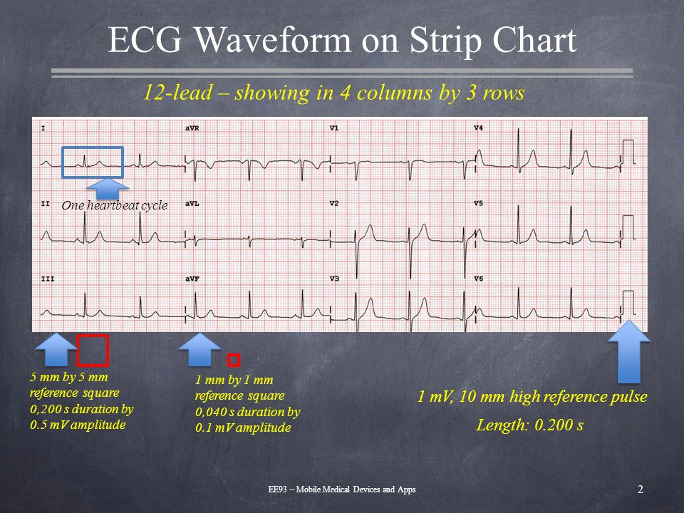 ECG Waveform on Strip Chart 2 EE93 – Mobile Medical Devices and Apps 1 mV, 10 mm high reference pulse Length: 0.200 s 5 mm by 5 mm reference square 0,