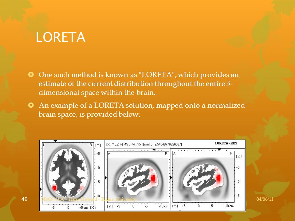 LORETA  One such method is known as