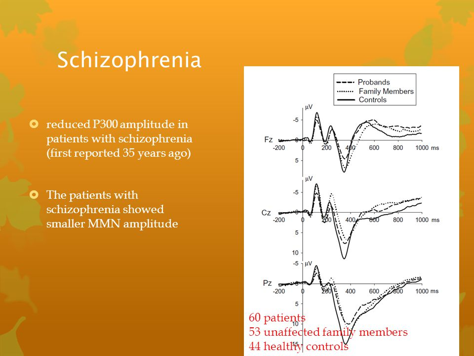 Schizophrenia  reduced P300 amplitude in patients with schizophrenia (first reported 35 years ago)  The patients with schizophrenia showed smaller M