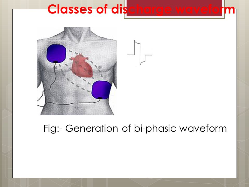 Classes of discharge waveform Fig:- Generation of bi-phasic waveform