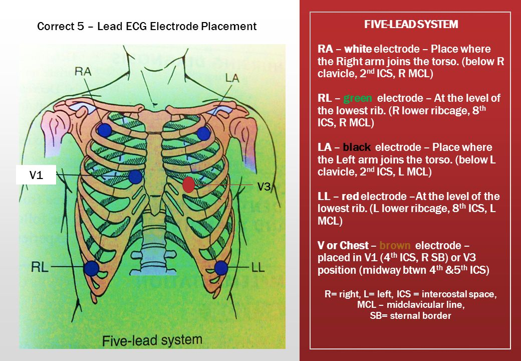 FIVE-LEAD SYSTEM RA – white electrode – Place where the Right arm joins the torso.