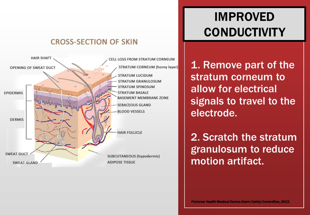 1.Remove part of the stratum corneum to allow for electrical signals to travel to the electrode.