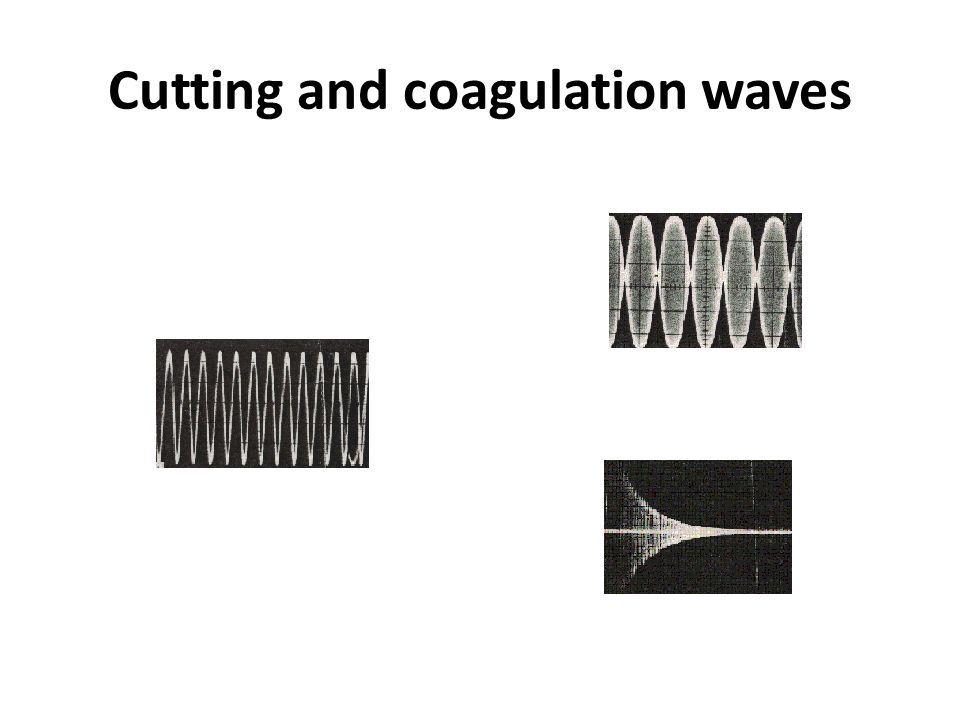 Cutting and coagulation waves