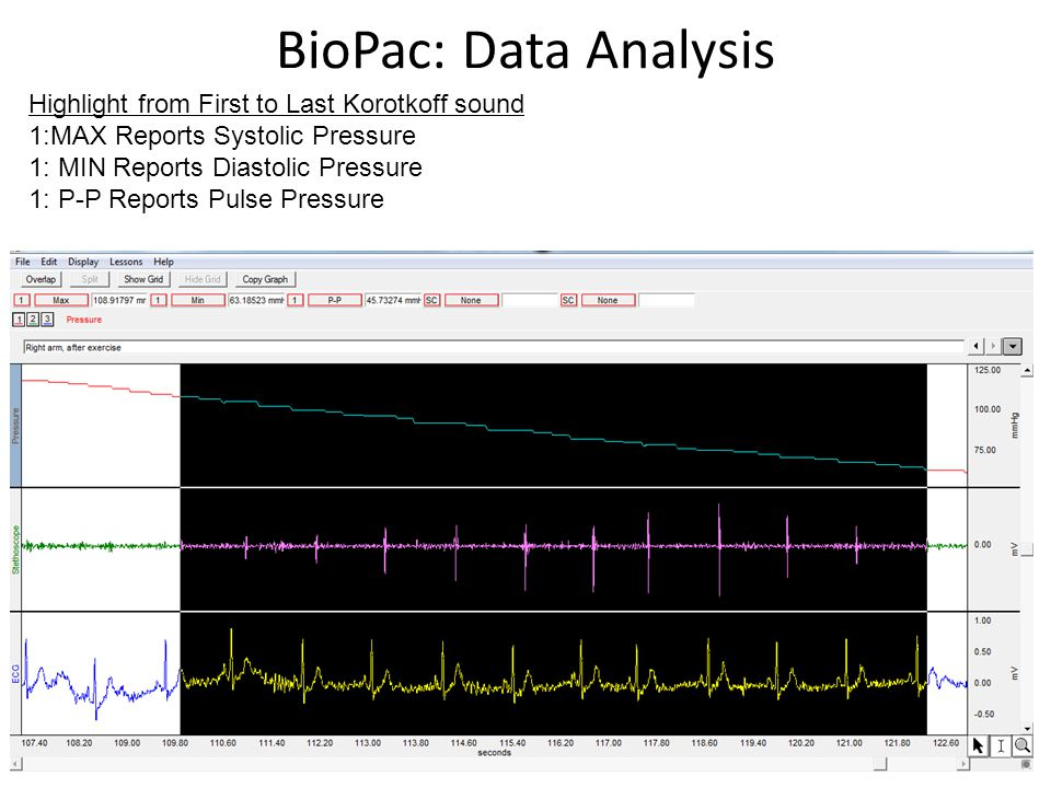 BioPac: Data Analysis Highlight from First to Last Korotkoff sound 1:MAX Reports Systolic Pressure 1: MIN Reports Diastolic Pressure 1: P-P Reports Pu