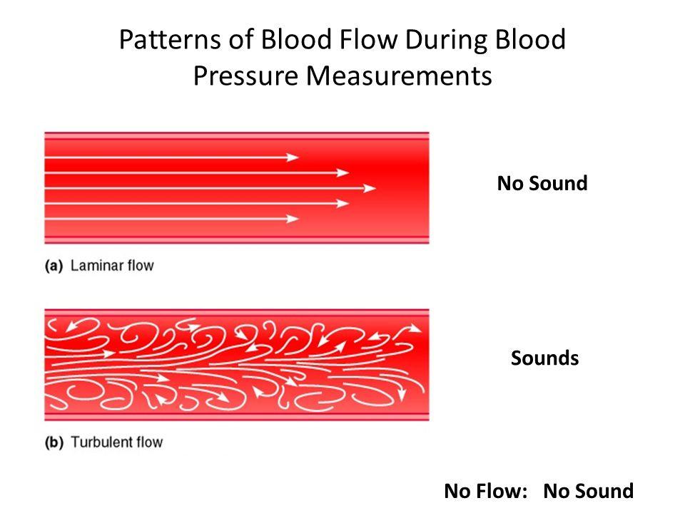 Patterns of Blood Flow During Blood Pressure Measurements No Sound Sounds No Flow: No Sound