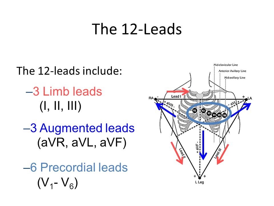 The 12-Leads The 12-leads include: –3 Limb leads (I, II, III) –3 Augmented leads (aVR, aVL, aVF) –6 Precordial leads (V 1 - V 6 )