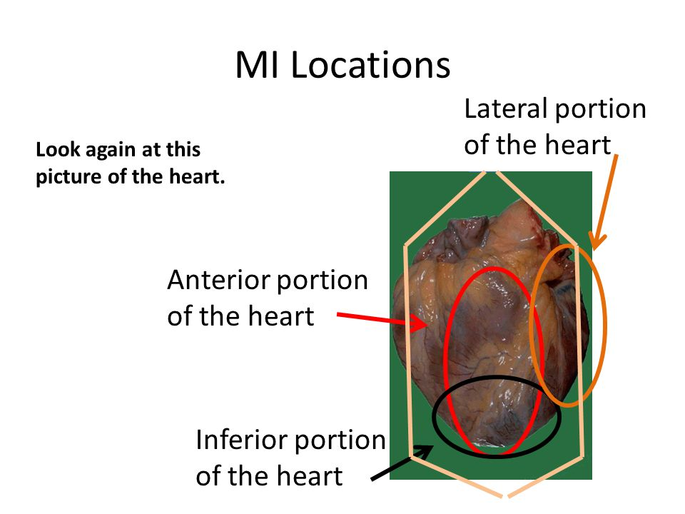 MI Locations Look again at this picture of the heart. Anterior portion of the heart Lateral portion of the heart Inferior portion of the heart