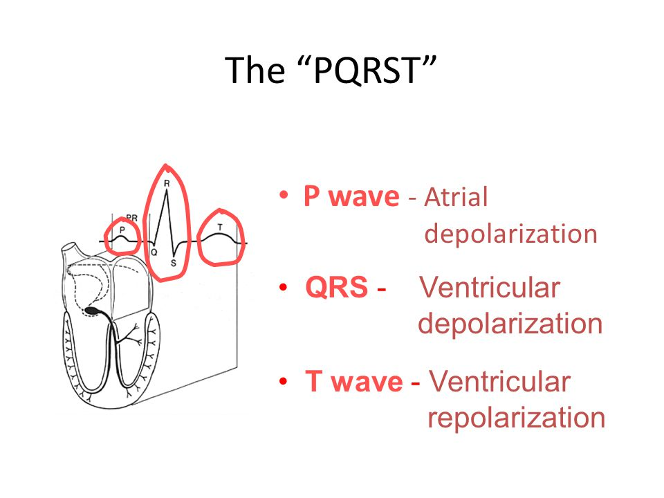 "The ""PQRST"" P wave - Atrial depolarization T wave - Ventricular repolarization QRS - Ventricular depolarization"