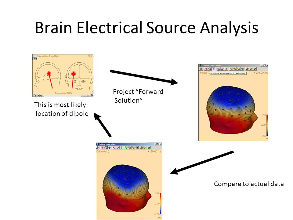 Brain Electrical Source Analysis This is most likely location of dipole Project Forward Solution Compare to actual data