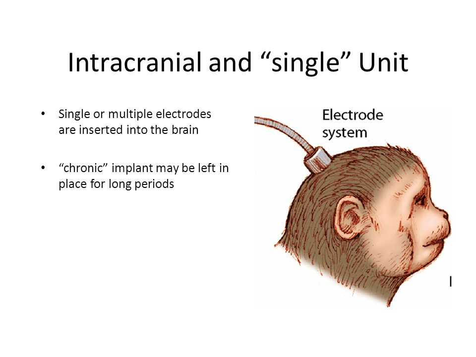 Intracranial and single Unit Single or multiple electrodes are inserted into the brain chronic implant may be left in place for long periods