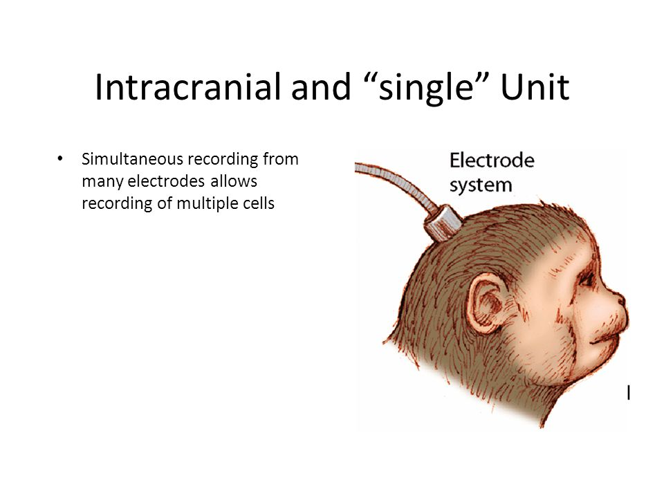 Intracranial and single Unit Simultaneous recording from many electrodes allows recording of multiple cells