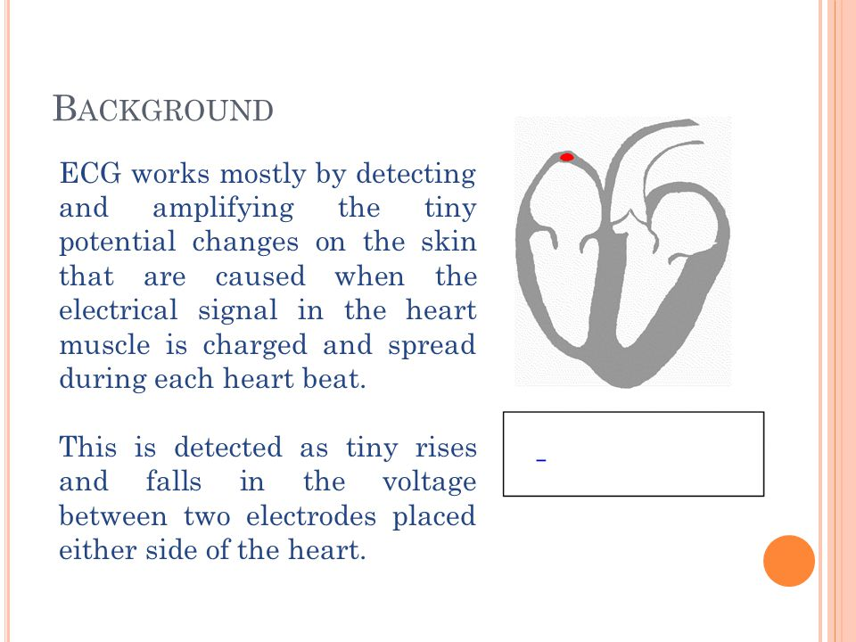 B ACKGROUND ECG works mostly by detecting and amplifying the tiny potential changes on the skin that are caused when the electrical signal in the hear