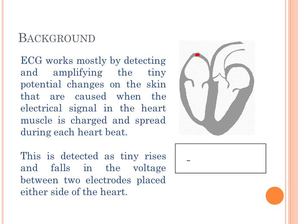 B ACKGROUND The heart s electrical system: Sinoatrial(SA) node Atrioventricular(AV) node His-Purkinje system