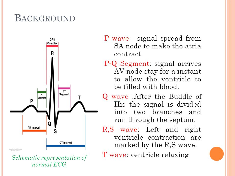 D ESIGN (2) Conclusion:  Comparison with ECG  Similar to ECG but not a substitute result  Different for different persons  However, it may be an interesting portable and lower cost alternative to M-mode echocardiography for monitoring of certain types of heart failure associated with heart mechanics, such as depressed systolic function, akinesia and fibrillation.