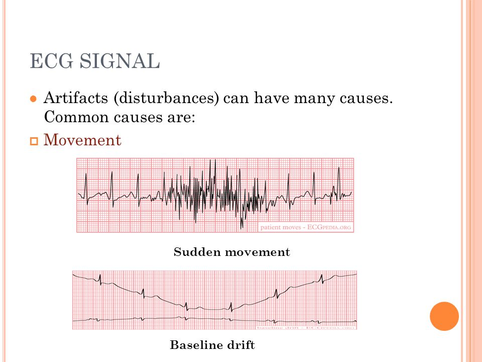 D ESIGN (7) Results Comparison of V2 and V5 precordial leads acquired with fabric and standard electrodes Comparison of precordial V2 and V5 ECG signals obtained with subject walking on the spot with standard and fabric electrodes.