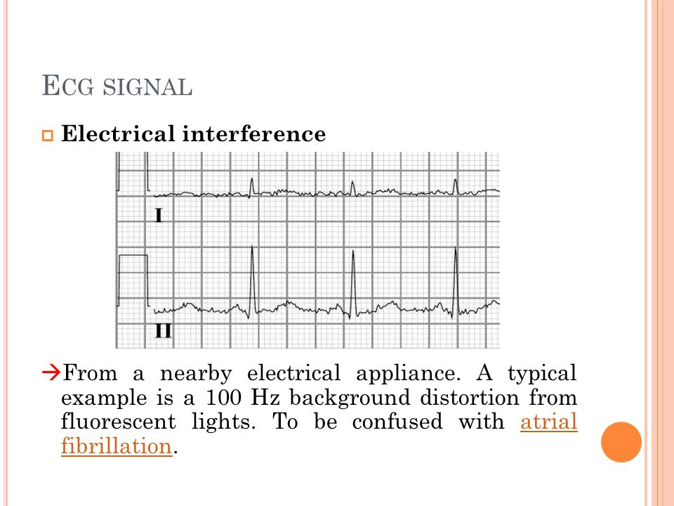 ECG ELECTRODE Lead  The signal recorded as the difference between two potentials on the body surface is called an ECG lead .