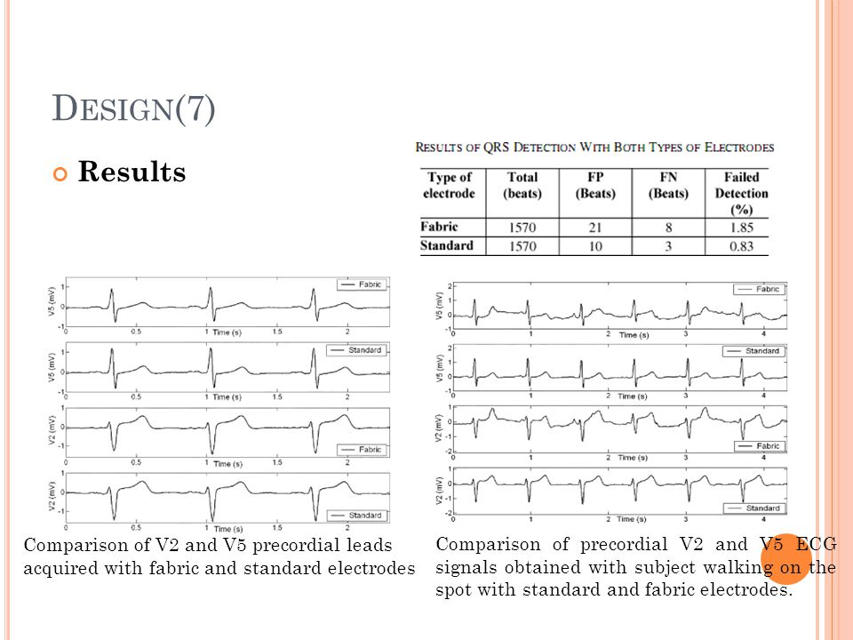 D ESIGN (7) Results Comparison of V2 and V5 precordial leads acquired with fabric and standard electrodes Comparison of precordial V2 and V5 ECG signa