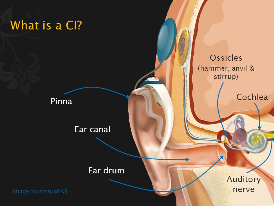 A CI is a surgically implanted device that electrically stimulates the auditory nerve fibres in the inner ear Image courtesy of AB What is a CI?