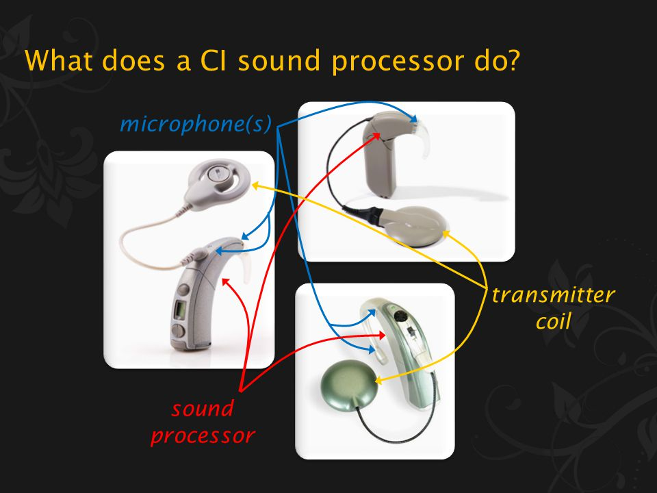 What a cochlear implant (CI) is and who can have one What a CI sound processor does How CI hearing compares to normal hearing Why music is particularly challenging for CI users How to get More From Music… What will I learn in the next 25 minutes