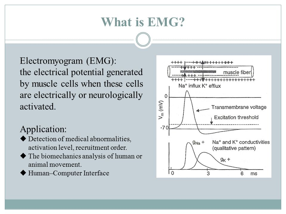 What is EMG.
