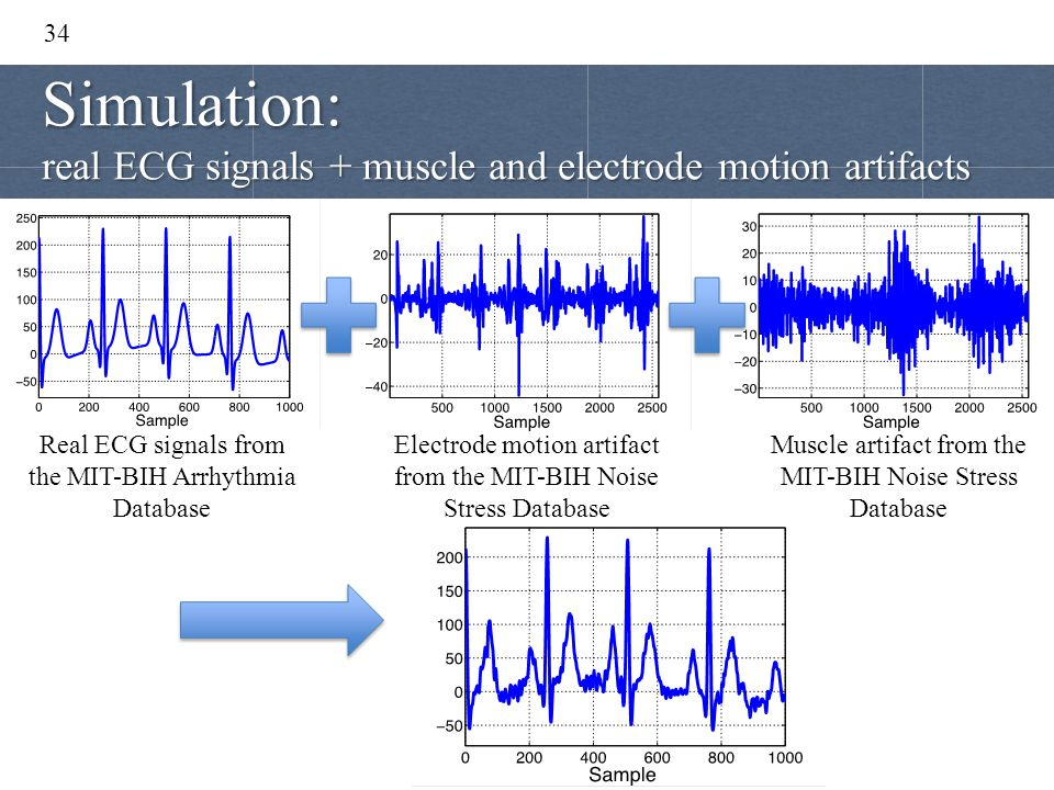 34 Real ECG signals from the MIT-BIH Arrhythmia Database Electrode motion artifact from the MIT-BIH Noise Stress Database Muscle artifact from the MIT