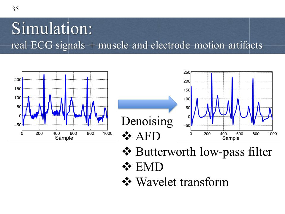 35 Denoising  AFD  Butterworth low-pass filter  EMD  Wavelet transform Simulation: real ECG signals + muscle and electrode motion artifacts