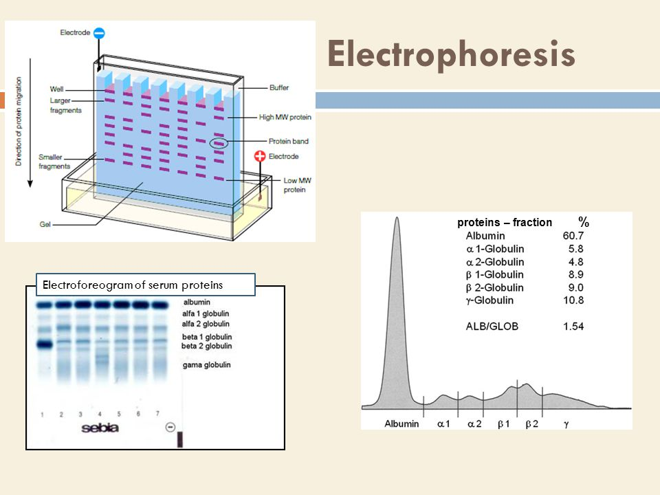 Electrophoresis Electroforeogram of serum proteins proteins – fraction %