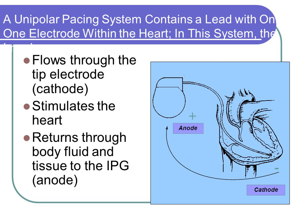 Flows through the tip electrode (cathode) Stimulates the heart Returns through body fluid and tissue to the IPG (anode) A Unipolar Pacing System Conta