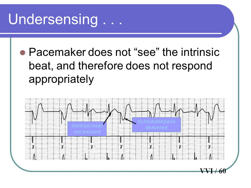"""Undersensing... Pacemaker does not """"see"""" the intrinsic beat, and therefore does not respond appropriately Intrinsic beat not sensed Scheduled pace del"""