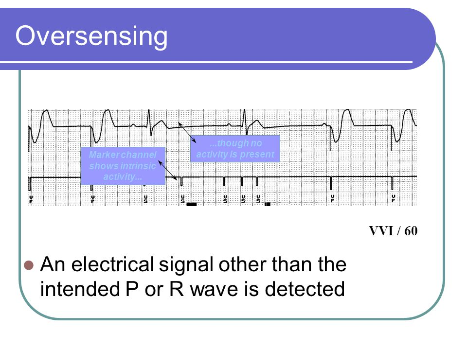 Oversensing An electrical signal other than the intended P or R wave is detected Marker channel shows intrinsic activity......though no activity is present VVI / 60