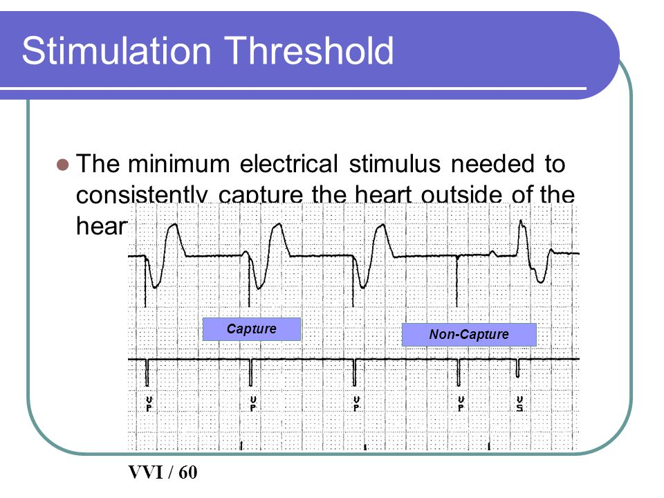 Stimulation Threshold The minimum electrical stimulus needed to consistently capture the heart outside of the heart's refractory period VVI / 60 Captu