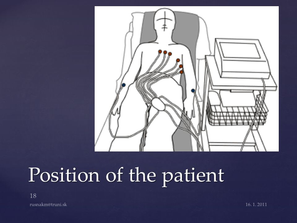 Position of the patient 16. 1. 2011 18 rusnakm@truni.sk