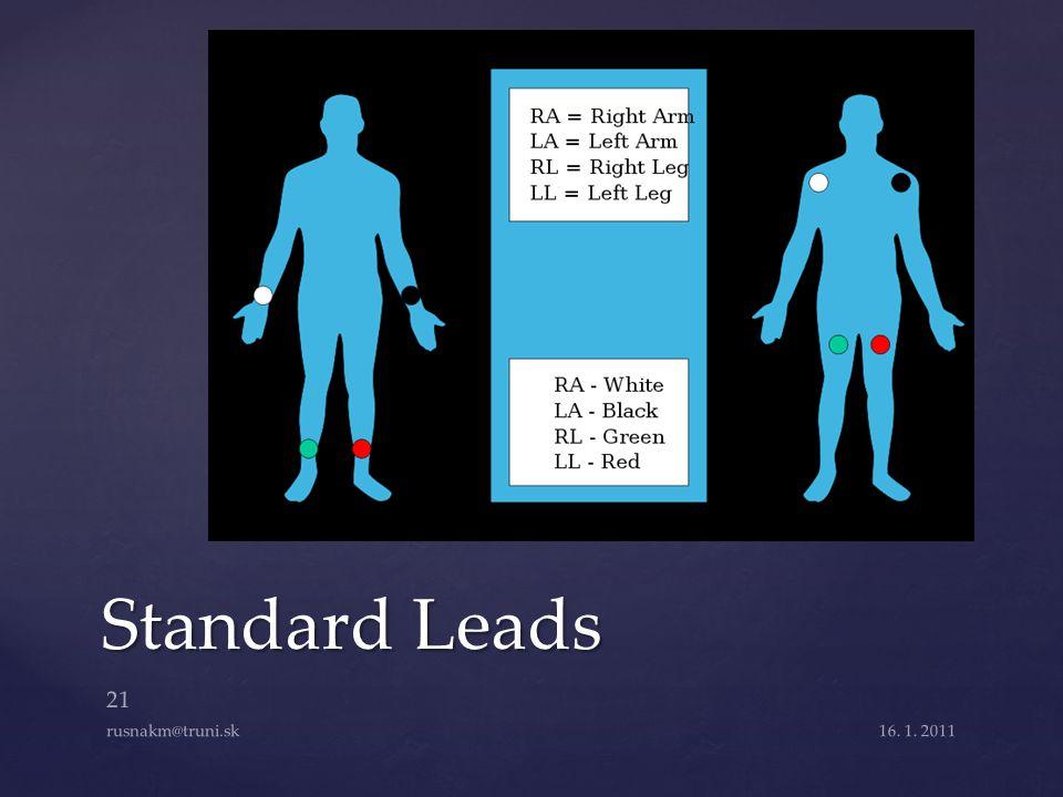Standard Leads 16. 1. 2011 21 rusnakm@truni.sk