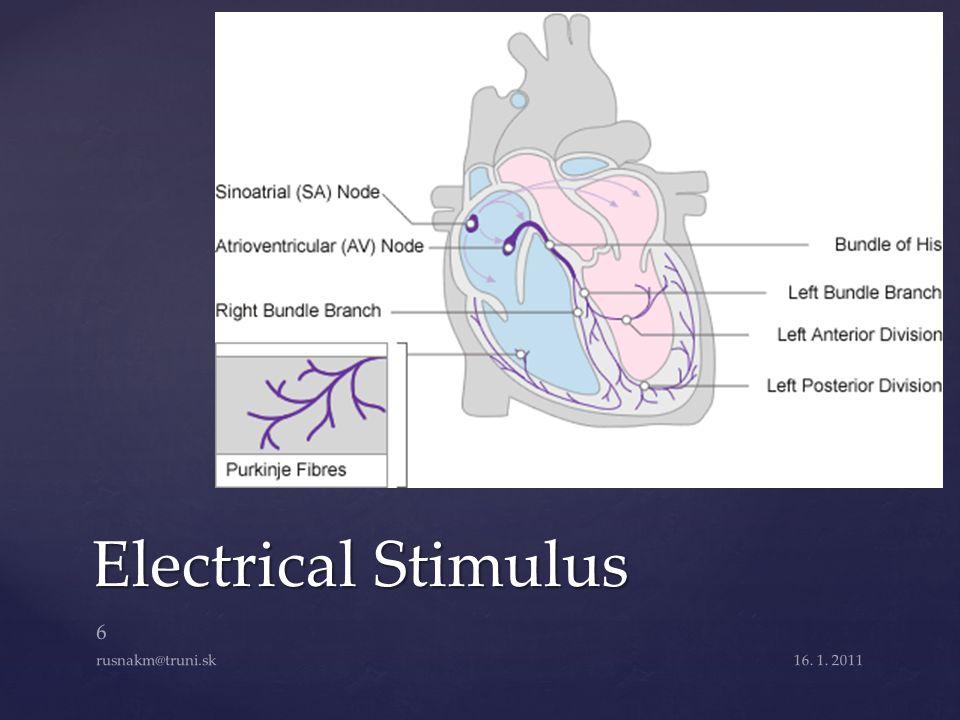Electrical Stimulus 16. 1. 2011 6 rusnakm@truni.sk