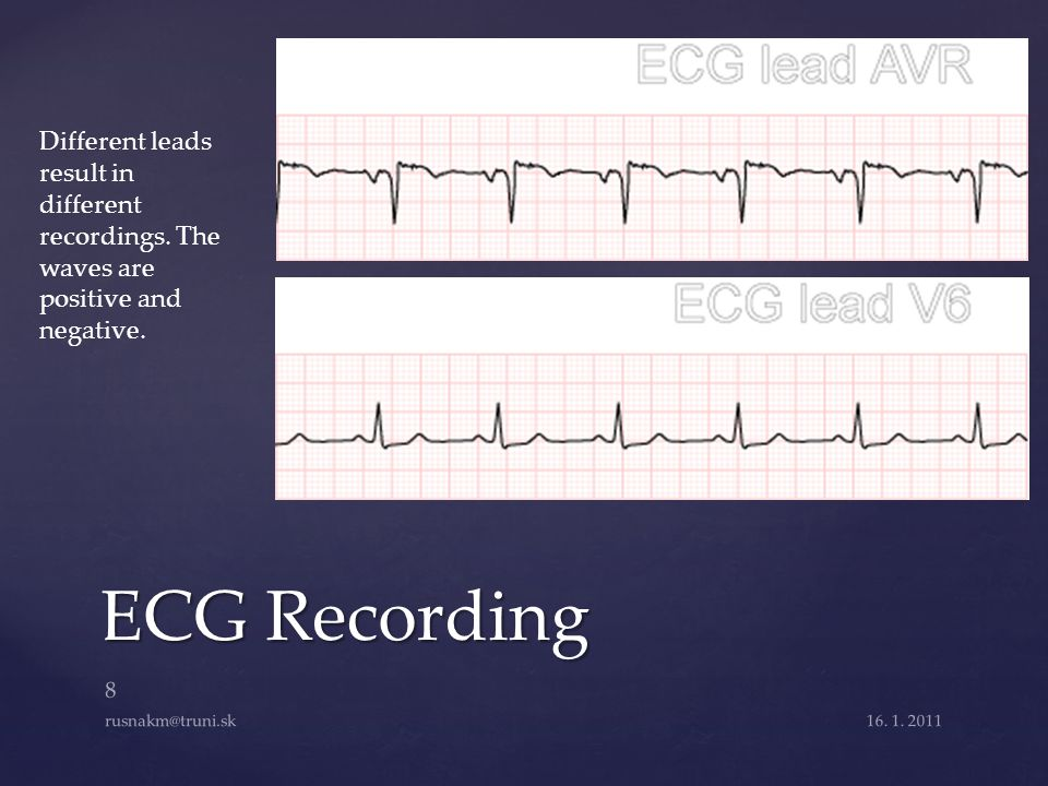 ECG Recording 16. 1. 2011 8 rusnakm@truni.sk Different leads result in different recordings. The waves are positive and negative.