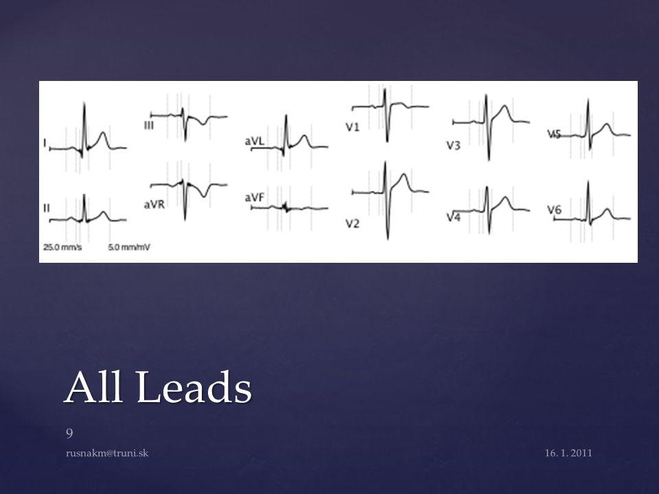 All Leads 16. 1. 2011 9 rusnakm@truni.sk