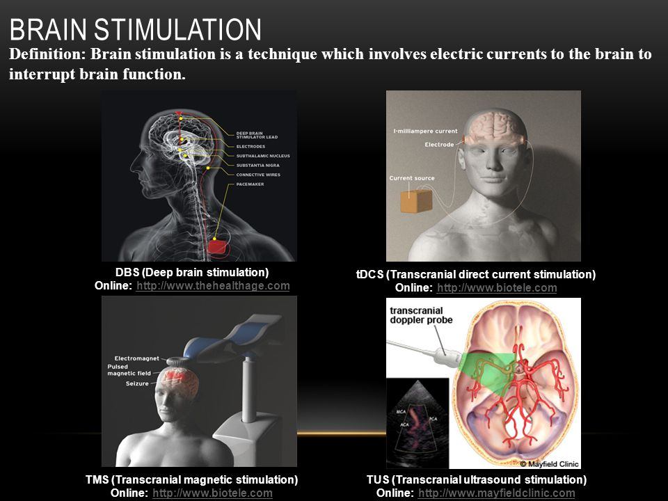 BRAIN STIMULATION TMS (Transcranial magnetic stimulation) Online: http://www.biotele.comhttp://www.biotele.com tDCS (Transcranial direct current stimulation) Online: http://www.biotele.comhttp://www.biotele.com TUS (Transcranial ultrasound stimulation) Online: http://www.mayfieldclinic.comhttp://www.mayfieldclinic.com Definition: Brain stimulation is a technique which involves electric currents to the brain to interrupt brain function.