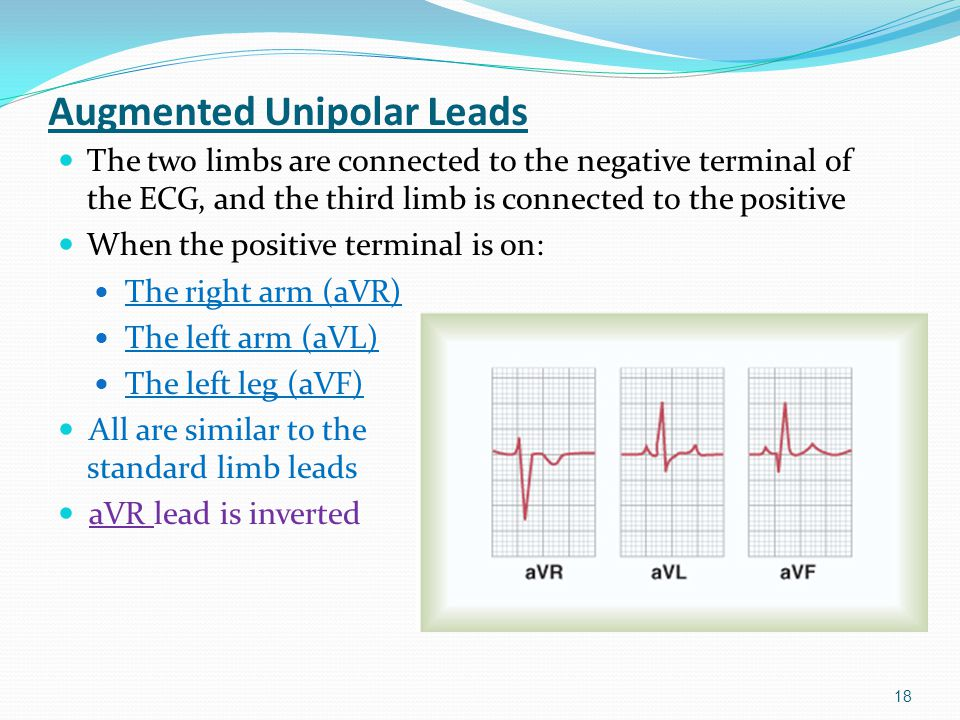 Augmented Unipolar Leads The two limbs are connected to the negative terminal of the ECG, and the third limb is connected to the positive When the pos