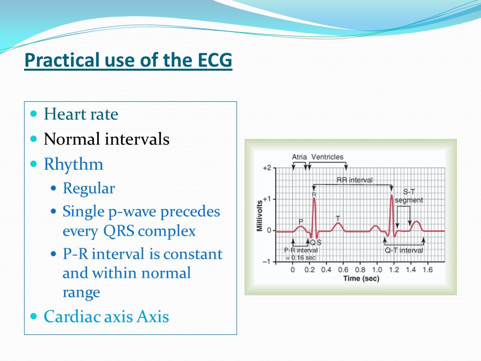 Practical use of the ECG Heart rate Normal intervals Rhythm Regular Single p-wave precedes every QRS complex P-R interval is constant and within norma