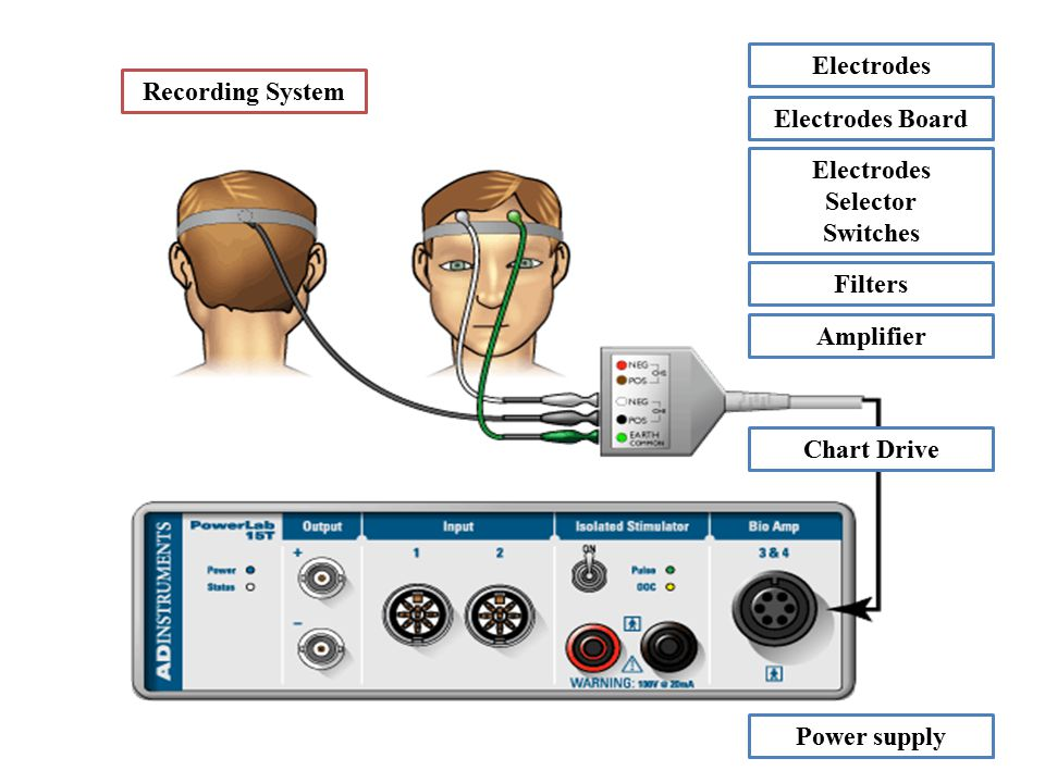 Recording System Electrodes Electrodes Board Electrodes Selector Switches Filters Amplifier Chart Drive Power supply