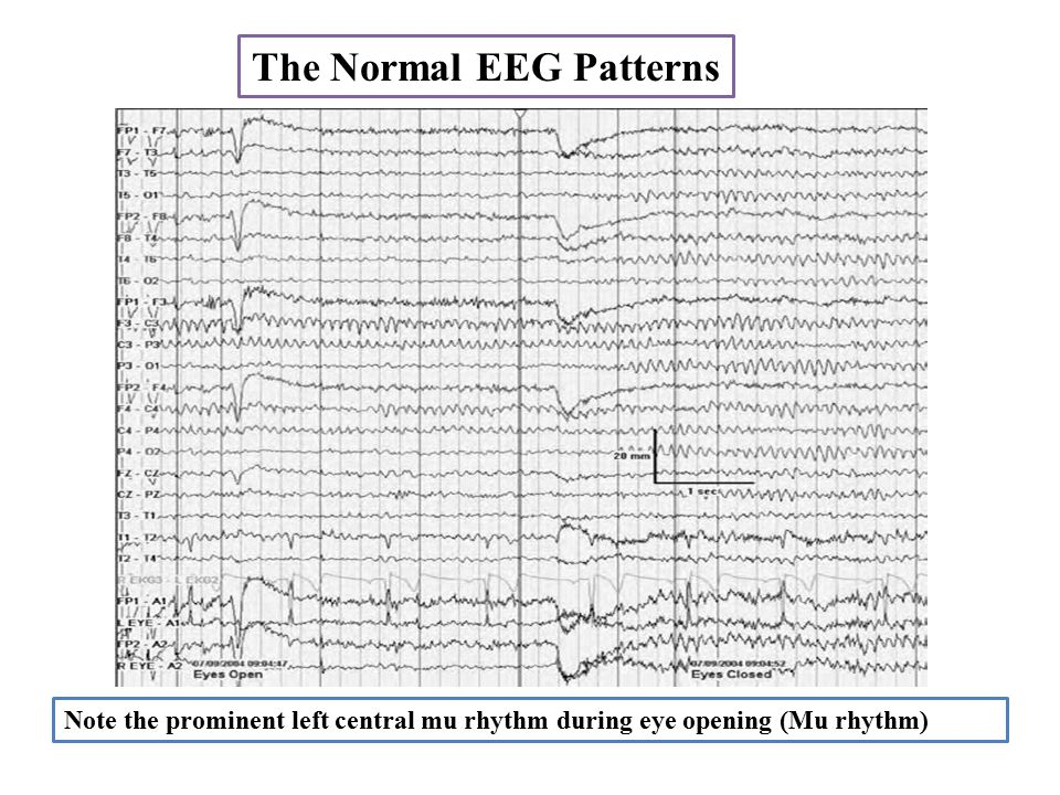The Normal EEG Patterns Note the prominent left central mu rhythm during eye opening (Mu rhythm)
