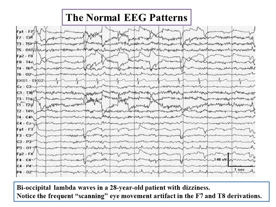 The Normal EEG Patterns Bi-occipital lambda waves in a 28-year-old patient with dizziness.
